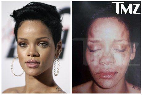 FORSLÅTT: Bildet til høyre ble publisert kort tid etter at Rihanna ble mishandlet. Foto: AP/TMZ