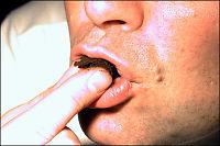 Snus effektivt for røykeslutt