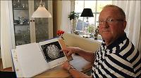Ønsket kontroll etter hjernesvulst - ventelistene slettet