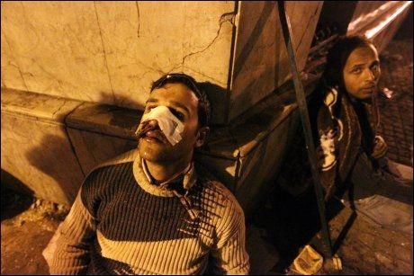 BLODIG: En såret demonstrant hviler mot en husvegg etter å ha fått førstehjelp på Tahrir-torget. Foto: AFP