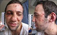 12 års fengsel for terrordømt enbent bokser