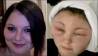 Carmen (25) farget håret - ble midlertidig blind