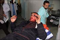 Luftangrepene på Gazastripen er de verste på tre år