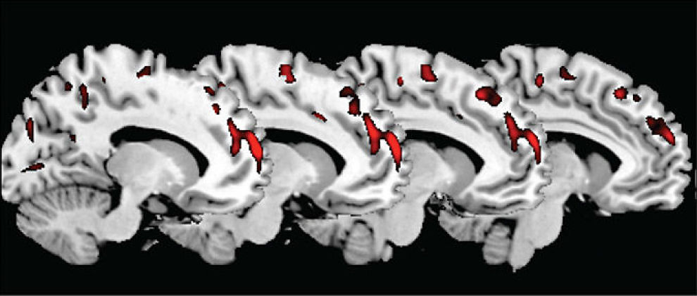 MINDRE GRÅ MASSE: Dette bildet viser psykopathjernene og de røde punktene viser hvor de har mindre grå masse i hjernen enn vanlige folk. Foto: Archives of general psychiatry