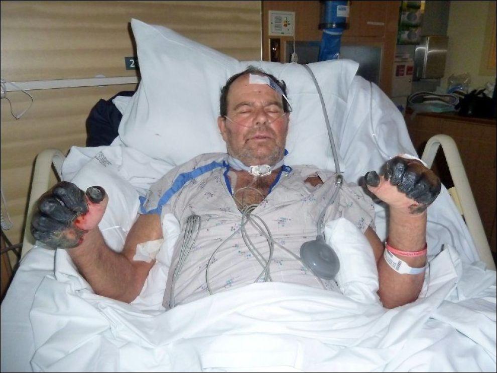 SVARTE HENDER: Amerikanske Paul Gaylord risikerer å miste hender og føtter etter å ha blitt smittet med byllepest av en katt. Foto: Familien Gaylord / AP / NTB scanpix