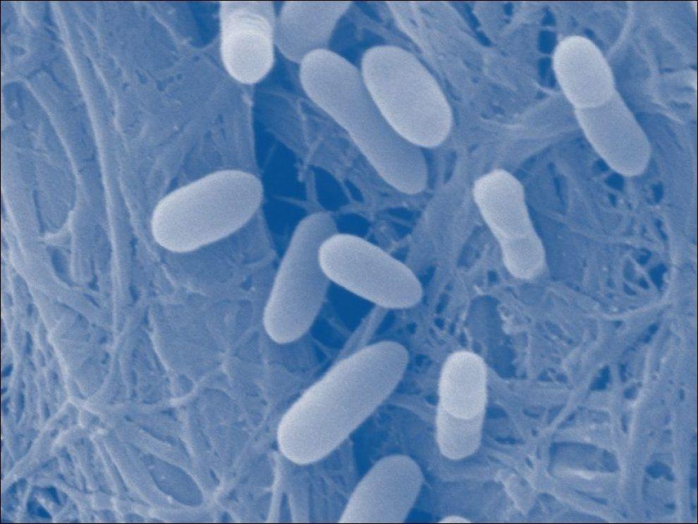 KAN VÆRE FARLIG: Slik kan E. coli-bakterier se ut. Foto: Henning Sørum, Norges Veterinærhøgskole