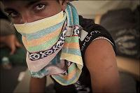 Khalid (15) om torturhelvetet i Syria: De hengte meg opp og slo til jeg besvimte