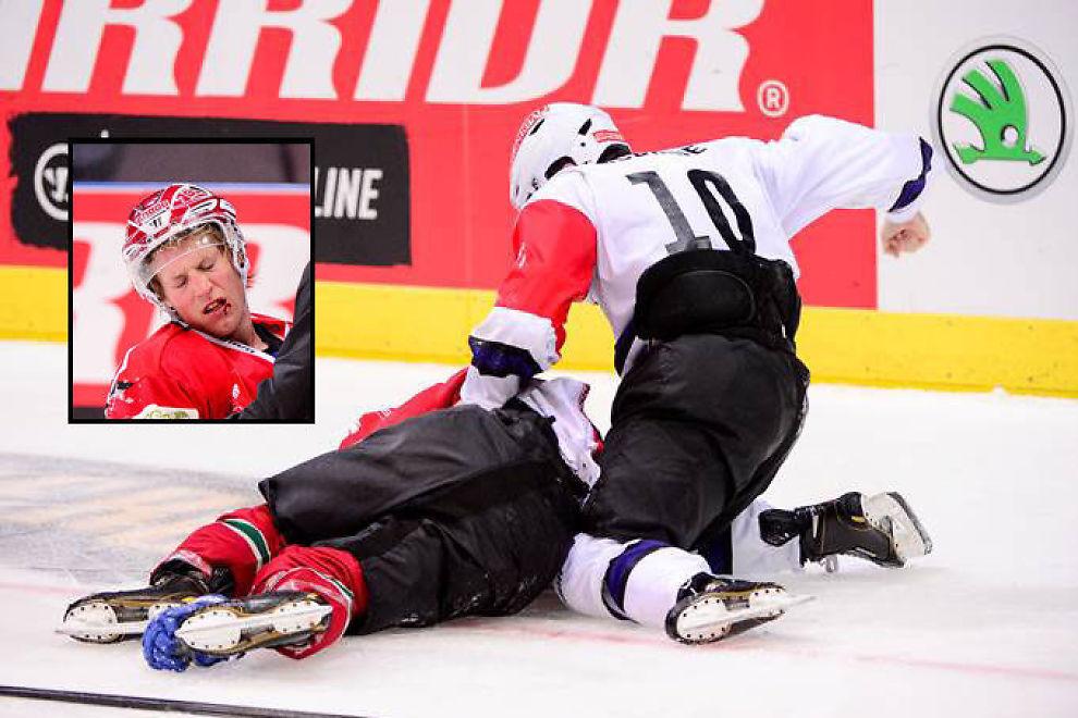 <p>TIL BLODS: Brock McBride dunket så hardt løs på Mathis Olimb at nordmannen måtte gå blødende av banen.<br/></p>