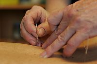 Studie: Akupunktur ikke bedre enn «falske» nålestikk
