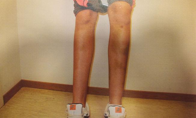 <p>LEGGENE: Bildet viser blåmerker på beina til fornærmede.</p>