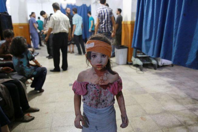 <p>SIVILE LIDER: En skadet syrisk jente på et sykehus i den regimebeleirede byen Douma utenfor Damaskus i august 2015. Jenta ble skadet i et bombeangrep fra regimet.</p>