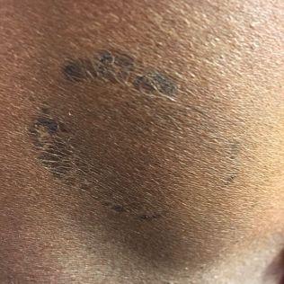 <p>BEVIS: Her er bitemerket som sprintesset hevder han ble påført av ekssamboeren under voldsepisoden natt til 8. november 2014.</p>