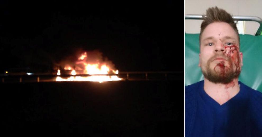 <p>ANGREPET: Bildet til venstre skal være tatt i forbindelse med angrepet på bussen hvor blant annet den norske journalisten Øystein Windstad satt i. Russiske medier bruker blant annet dette bildet, som også er lagt ut på Twitter. Til høyre er den norske journalisten fotografert på sykehuset etter angrepet. Foto: PRIVAT</p>