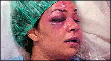 VOLDSOFFER: Rania al-Baz trosset kulturen i hjemlandet og nektet å tie om at ektemannen nær slo henne i hjel. Slik så hun ut få dager etter angrepet. Foto: PRIVAT/AFP