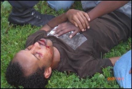 SKADET: Her ligger Ali Haji Mohamed Farah (37) hardt skadet i Sofienbergparken. Nå innrømmer sykehuset at de begikk feil da ambulansearbeiderne ikke ville ta ham med seg. Foto: ØYVIND LÅTE