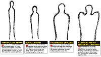 Steinerskolen mener kroppsform viser personlighet