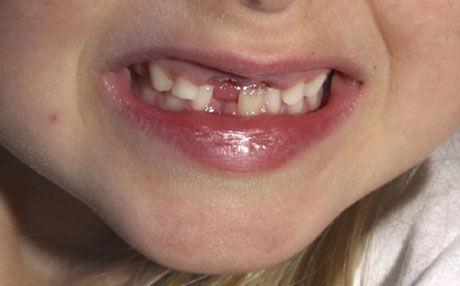 Tannfelling: Når barna feller tenner, betyr det at deres første livsfase nærmer seg slutten, ifølge Steinerskolen. Først da er de modne for læring. Foto: Scanpix