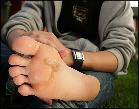 ORM I FOTEN: En mindre kjent reisesykdom er kanskje parasitter som kommer inn under huden. Her er foten til Rune Myra i 2006 etter at han fikk en hakeorm under huden etter en reise til Afrika. Foto: Scanpix