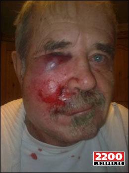 SKADET AV RAKETT: I Oslo, Trondheim og Troms ble personer skadet av raketter. Denne mannen (64) fra Troms fikk en rakett i øyet, men berget synet ved bruk av vernebriller. Foto: Leserbilde