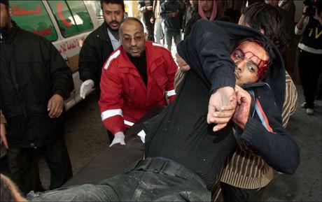 SKADET PÅ HANDLETUR: Denne mannen ble skadet under et granatangrep som rammet et handleområde i Gaza søndag. Foto: Reuters Foto: