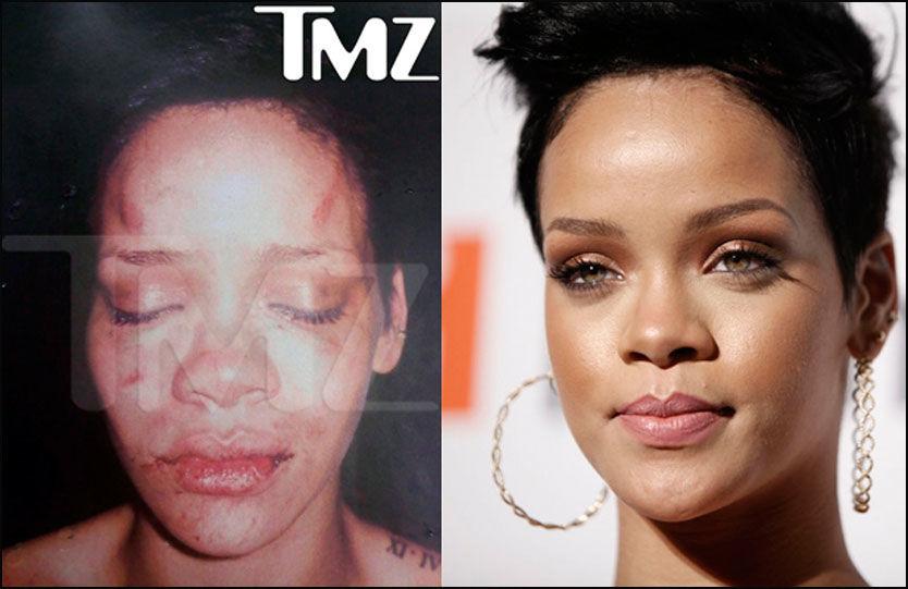 TYDELIGE SKADER: Bildet av en forslått Rihanna skal ha blitt tatt kort tid etter voldsangrepet. Tatoveringen på skulderen avslører at det er Rihanna som ble angrepet. Foto: TMZ.COM/AP
