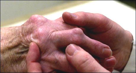 Medisiner som blant annet brukes mot revmatiske kan gi vektøkning. Foto: Scanpix