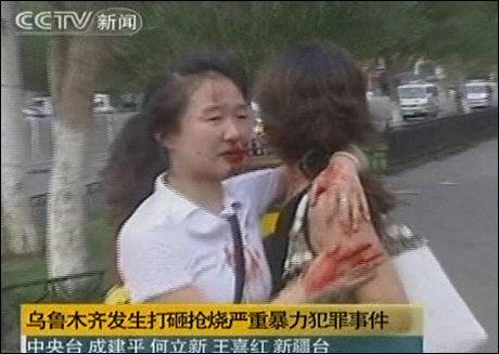 TRØST: To kvinner som skal ha blitt skadet i opptøyene nordvest i Kina, trøster hverandre. Foto: AP Foto: