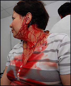 BLODIG: Flere av journalistene ble alvorlig skadet under angrepet. Her venter en kvinnelig journalist på behandling. Foto: AFP
