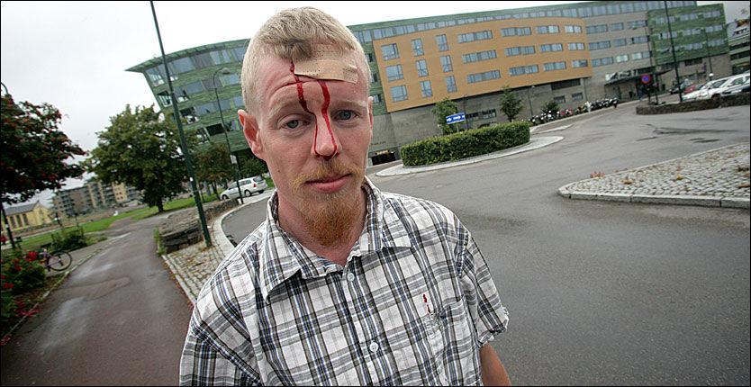BLODIG ALVOR: Norgespatriotenes leder Øyvind Heian (28) måtte forlate skoledebatten med blod rennende fra hodet etter at han ble truffet av et kronestykke. Foto: Alf Øystein Støtvig