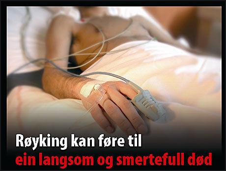 STERKE BILDER: Advarslene på røykpakkene blir kraftigere. Foto: Helsedirektoratet