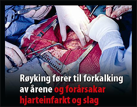 STERKE BILDER: Dette er et av bildene som skal settes på norske røykpakker. Foto: Helsedirektoratet