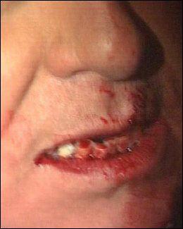 BLODIG TANNPARTI: Slik så Berlusconi ut etter miniatyr-angrepet. Foto: AP