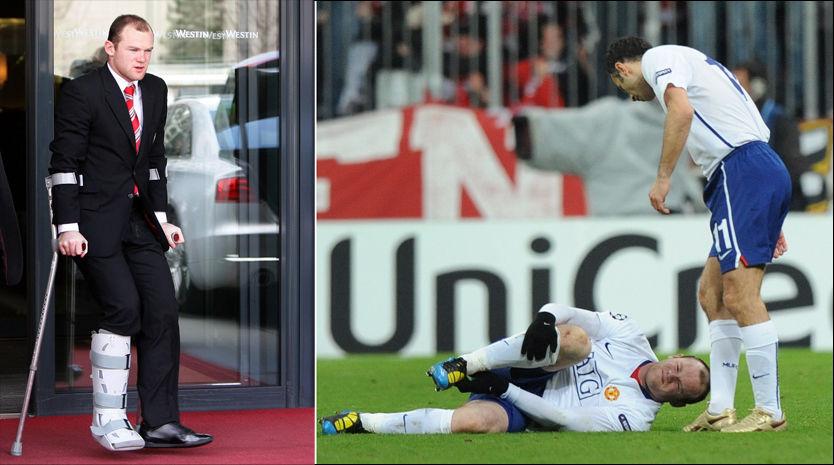 PÅ VEI TILBAKE: De første spådommene var dystre, men nå nærmer Rooney seg comeback etter ankelskaden. Foto: AP
