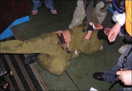 BLODIG: Bildene viser flere israelske soldater. Foto: Hurriyet