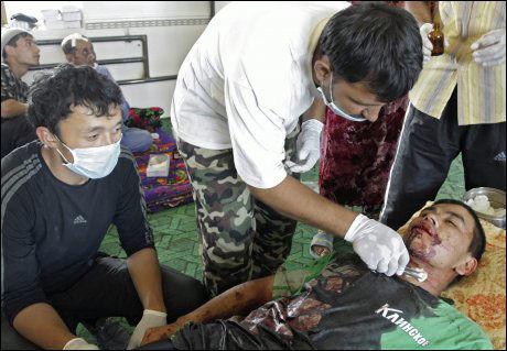SÅRET: En lege prøver å redde livet til en mann som er skadet i opptøyene. Foto: EPA
