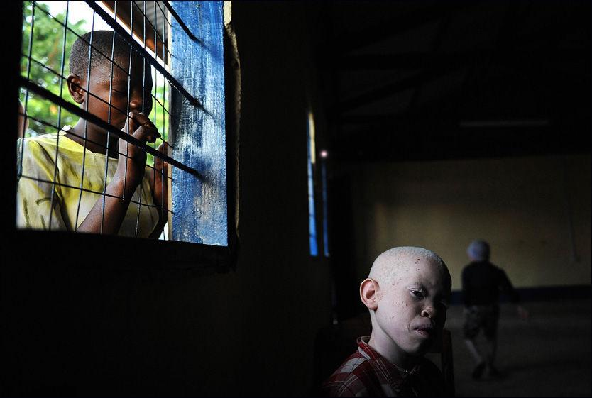 FORFULGT: Albinoer lever farlig i flere afrikanske land. Bare de siste tre årene har over 50 albinoer blitt myrdet i Tanzania. Ni år gamle Mariam Emmanuel mistet sin fem år gamle søster i det som blir beskrevet som en rekke brutale mord på albinoer i Afrika i 2009. Foto: AFP