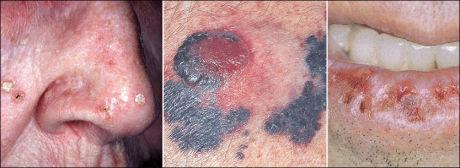 MERKET AV SOLA: Bildet til venstre viser en forstadie til hudkreft. Føflekk med kreft i midten. Mannen til høyre har fått solskader på underleppen. Foto: PRIVAT