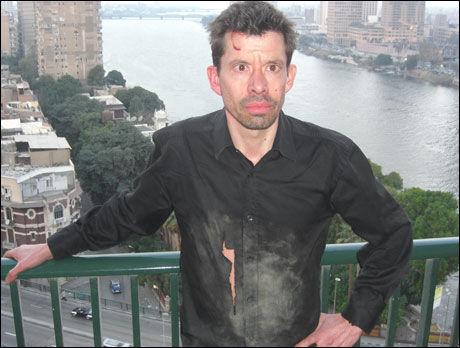 MØRBANKET: VG Netts Erlend Skevik er en av mange journalister som er blitt angrepet under dagens kamper i Kairo. Minst 1.500 mennesker skal ha blitt skadet hittil i dag. Foto: VG Nett