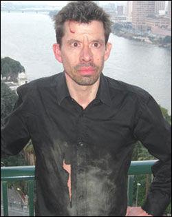 MØRBANKET: VG Netts Erlend Skevik er en av mange journalister som ble angrepet under kampene i Kairo. Foto: VG Nett