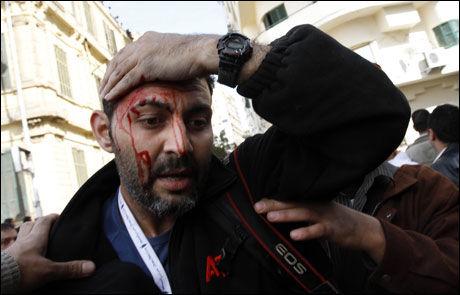 BLODIG: Flere pressefolk ble denne uken angrepet i Kairo. Her har en AP-fotograf fått skader i hodet. Foto: AFP
