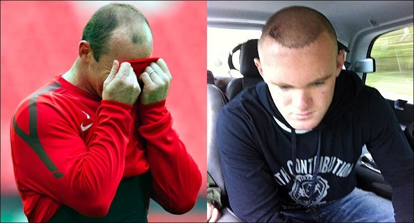 FØR OG ETTER: Wayne Rooney satt tydelig i en bil da han sørget for å få sin nye sveis offentliggjort for første gang (til h.) Til venstre er han avbildet før Champions League-finalen 28. mai. Foto: Wayne Rooneys Twitter-konto / Fredrik Solstad, VG
