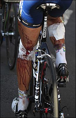 SKADET: Johnny Hoogerland, etter at han kom seg på sykkelen igjen. Foto: AP