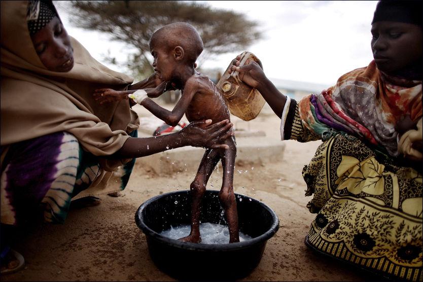 Abdilfatah (2) har krysset en hel ørken - uten mat og vann - Somalia - VG