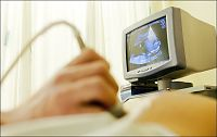 Flertall for å tilby tidlig ultralyd