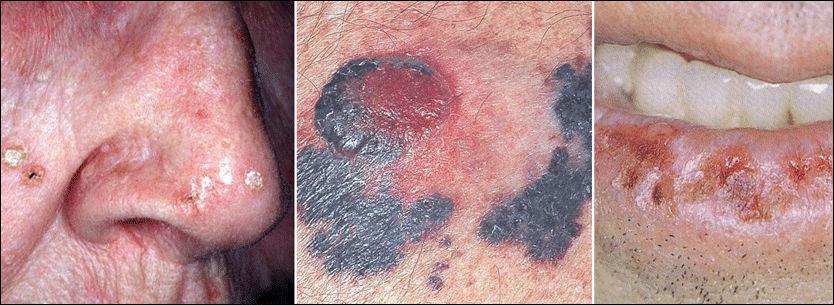 FØFLEKKREFT: Bildet til venstre viser en forstadie til hudkreft. Føflekk med kreft i midten. Mannen til høyre har fått solskader på underleppen. Krefttesten som flere norske sykehus ikke tilbyr, kan anslå spredning av blant annet føflekkreft. Foto: Privat