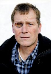 SVIKT: Helsetilsynet kritiserer at Olve Østebø ikke fikk diagnosen tidligere. Han mistet øyet etter kreften. Foto: LARS KRISTIAN AALGAARD