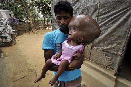 OPERERT: Roona Begum før operasjonen som ifølge legene reddet livet hennes. Her sammen med far Abdul Rahman. Foto: AFP