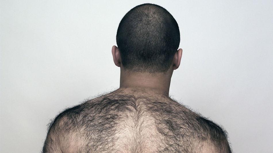 hårfjerning på ryggen