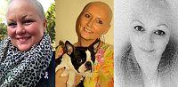 Hyller Stordalen: Kreftsyke kaster parykken på Facebook