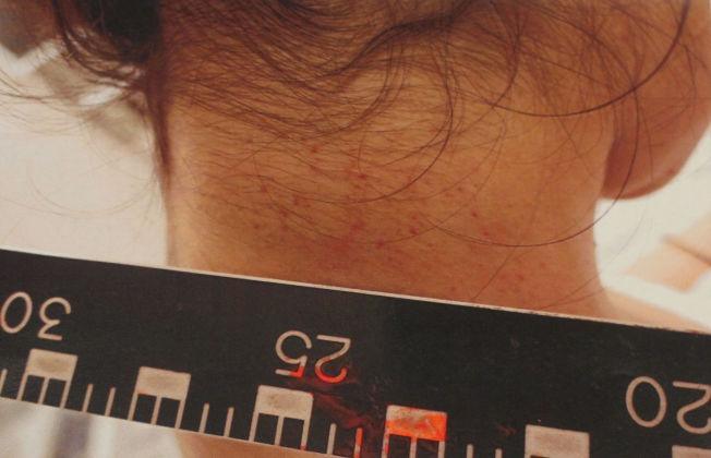 <p>HALSEN: Bildet viser små røde prikker på halsen til fornærmede og ble tatt samme natt som hendelsen skjedde.</p>